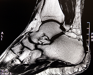 foot and ankle mri allamerican teleradiology all